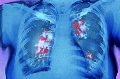 So bekämpft die neue Therapie den Krebs