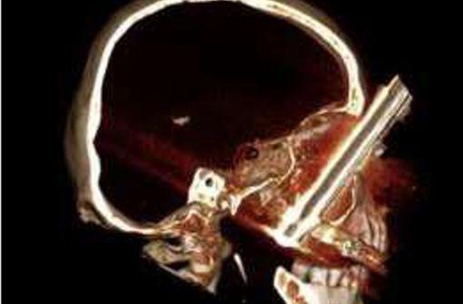 Die CT-Aufnahme zeigt den Kochtopfstiel, der in der Augenhöhle des 64-Jährigen feststeckt.  Foto: DGMKG