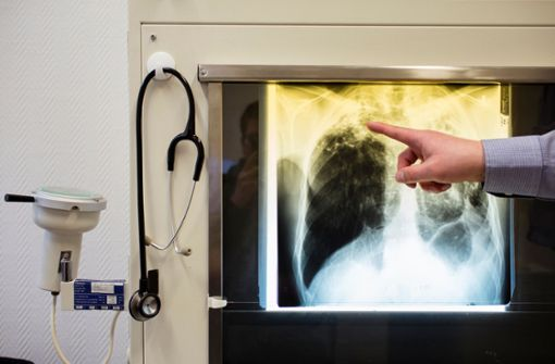 Tuberkulose bleibt tödlichste Infektionskrankheit