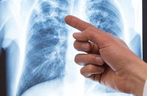 Bürger blicken skeptisch auf künfiges Gesundheitssystem