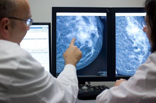 Röntgenbild einer weiblichen Brust: Wenn operiert werden muss, sind hohe Fallzahlen maßgeblich für den Behandlungserfolg. Foto: dpa