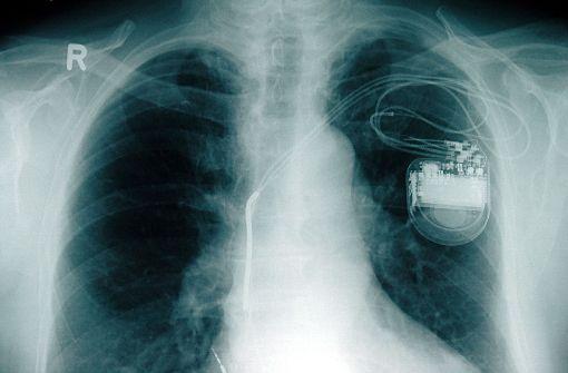 Ohrfeige für 400 Herz-Patienten in Göppingen