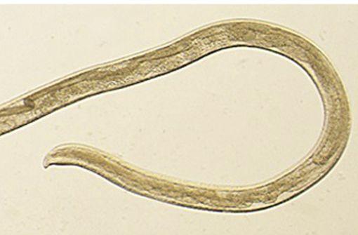Der Parasit wird durch Fliegen übertragen. Es ist der erste bekannte Fall bei einem Menschen. Foto: Centers for Disease Control and Prevention