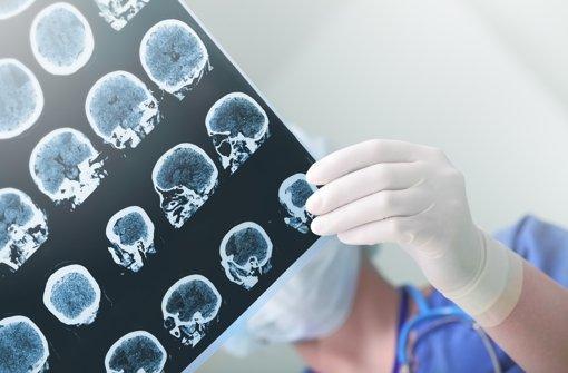1375 Gramm wiegt im Durchschnitt das Gehirn eines erwachsenen Mannes, das einer Frau 1245 Gramm. Der Gewichtsunterschied hat keinerlei Auswirkungen auf die Intelligenz. Das Frauengehirn bringt die gleiche Leistung bei weniger Gewicht. Der vollständige Kopf wiegt übrigens etwa sechs Kilogramm. Foto: Fotolia/© sudok1