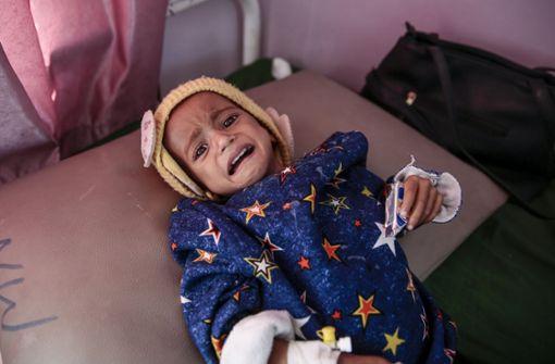 Ein unterernährtes Kind in Sanaa in Jemen. Ein Bürgerkrieg hat die Nahrungslieferungen gekappt. Foto: dpa