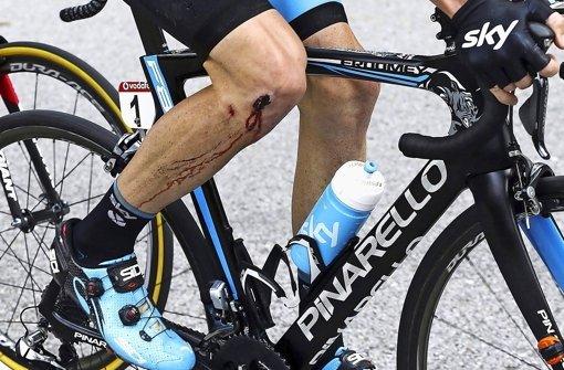 Schmerzhafte Wunde bei der  Vuelta: Chris Froome muss aufgeben Foto: DPA