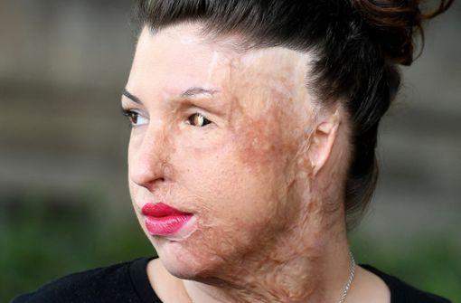 Säureopfer bekommt 250.000 Euro Schmerzensgeld zugesprochen