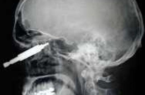 Schraubenschlüssel: Bei einem Arbeitsunfall wurde dieser 42-Jährige von einem Sechskantschraubenschlüssel gepfählt. Chirurgen der Berliner   Charitè Klinik konnten das Werkzeug entfernten.    Foto: DGMKG/Charité Universitätsmedizin Berlin