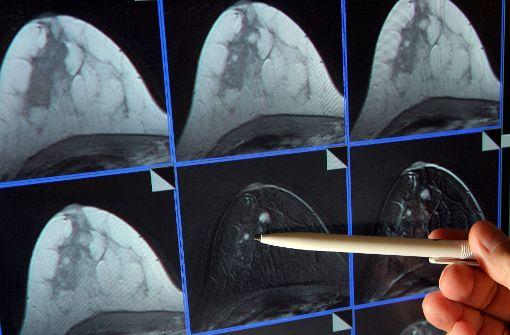 Ärzte versuchen im Kampf gegen Krebs dem Tumor mit vielen Methoden bezukommen. Foto: dpa-Zentralbild