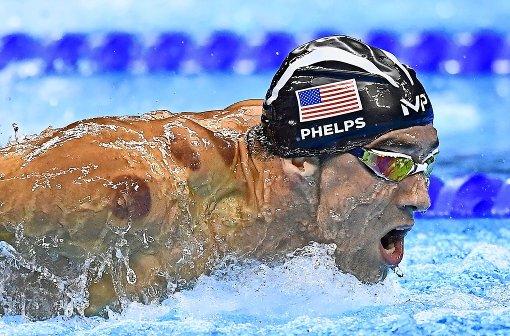 Durch Schröpfen schneller schwimmen?